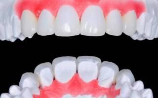 10 лучших зубных протезов – рейтинг 2020