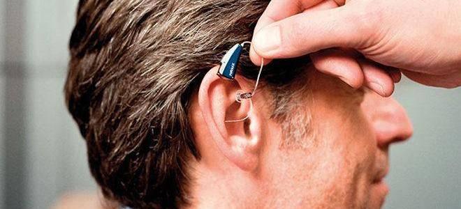 15 лучших слуховых аппаратов – рейтинг 2020